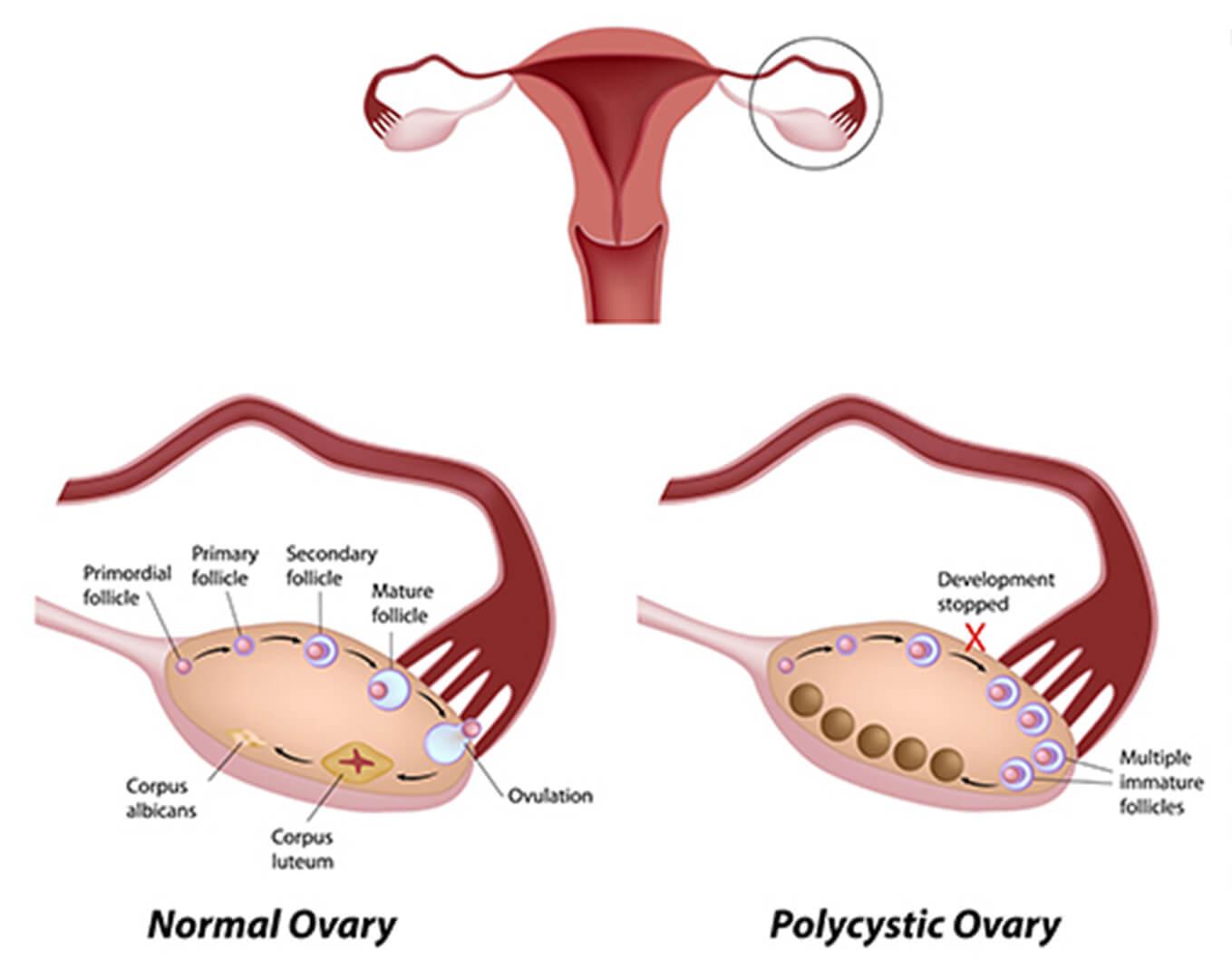 Polycystic Ovary Diagram